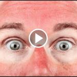 Sonnebrand Haut Roetung